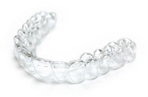 Làm máng tẩy trắng răng tại nhà có tốt không? NK Paris 1