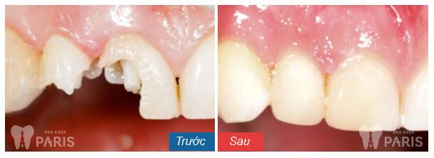 Bọc răng sứ là cách xử lý sâu chân răng hiệu quả, giúp bảo tồn răng thật tối đa