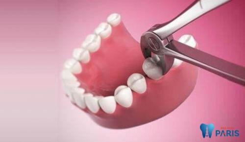 Giải đáp: Sâu răng cấm có nên nhổ hay không? 1