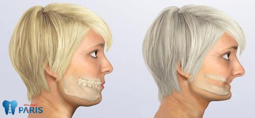 Giải đáp: Sâu răng cấm có nên nhổ hay không? 2