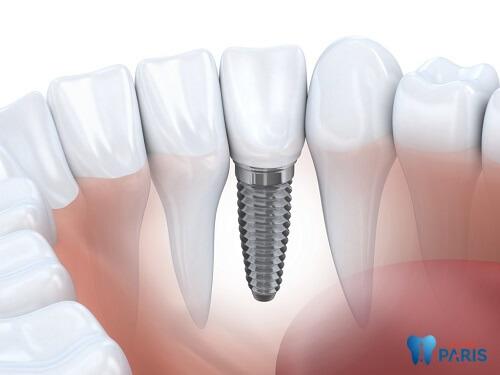 Giải đáp: Sâu răng cấm có nên nhổ hay không? 3