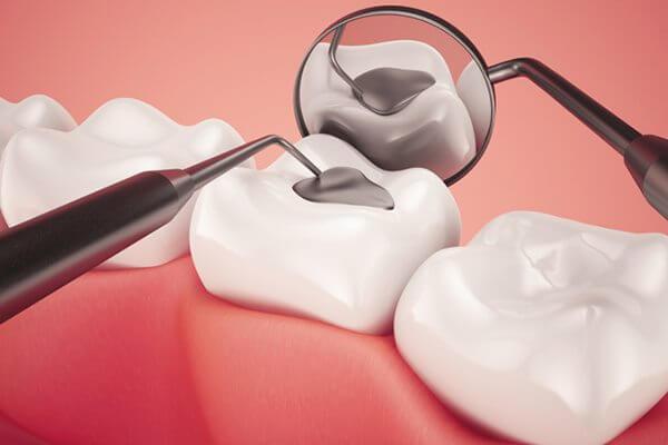 Nguyên nhân và cách chữa sâu răng cửa Vĩnh Viễn chỉ sau 5 phút 3
