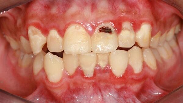 Nguyên nhân và cách chữa sâu răng cửa Vĩnh Viễn chỉ sau 5 phút 1