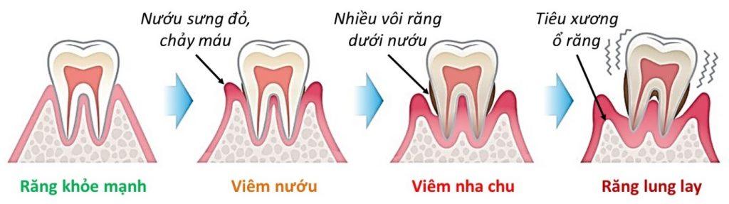 Dấu hiệu viêm tủy răng là gì? Đi tìm nguyên nhân và cách điều trị hiệu quả 2