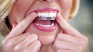 nên tẩy trắng răng bằng phương pháp nào 2