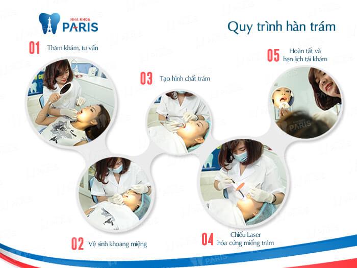 Chi tiết các bước trong quy trình trám răng sâu chuẩn Pháp 2