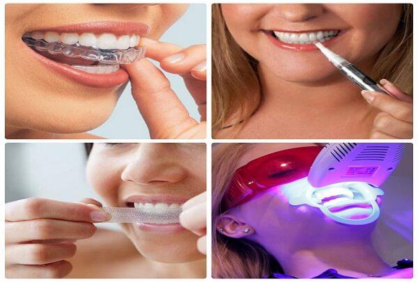 Bác sĩ tư vấn: Nên tẩy trắng răng bằng phương pháp nào? 1