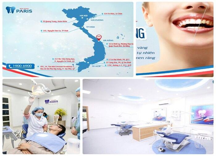 Quy trình tẩy trắng răng như thế nào với công nghệ WhiteMax? 3