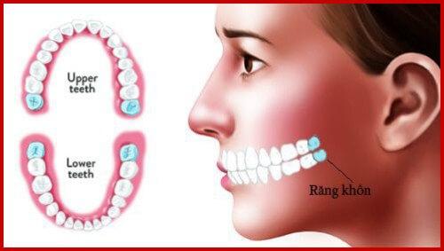 Răng hàm có mấy chân? – Chuyên gia nha khoa giải đáp 1