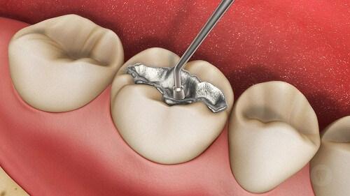 Bị sâu răng phải làm sao? Có nên nhổ răng sâu không? 3