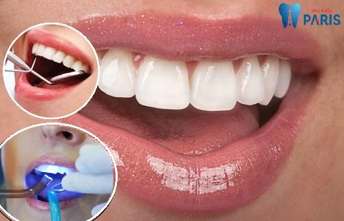 Bệnh sâu răng là gì ? - Cách điều trị & ngăn ngừa hiệu quả 3