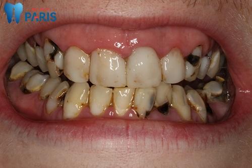 Bệnh sâu răng là gì ? - Cách điều trị & ngăn ngừa hiệu quả 1