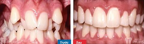 Đánh lún răng là gì? Khi nào thì áp dụng được? 4