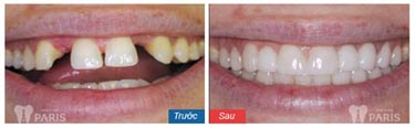 Dịch vụ bọc răng sứ