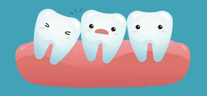 Nên nhổ răng khôn không nếu răng mọc lệch, mọc ngầm? 4