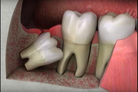Nên nhổ răng khôn không nếu răng mọc lệch, mọc ngầm? 2