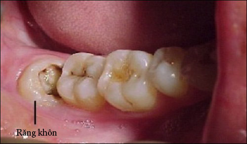 Nên nhổ răng khôn không nếu răng mọc lệch, mọc ngầm? 3