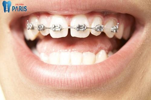 Trọn gói: Niềng răng hô hàm trên giá bao nhiêu ?