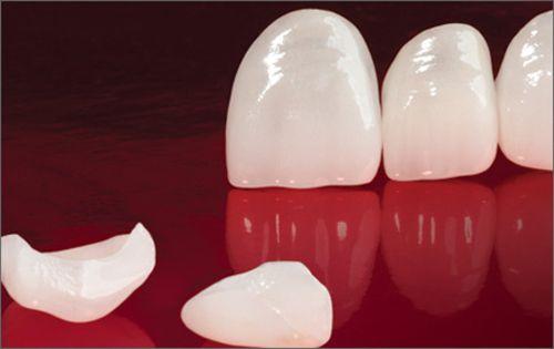 Bọc răng sứ giá bao nhiêu? – Bác sĩ nha khoa giải đáp 1