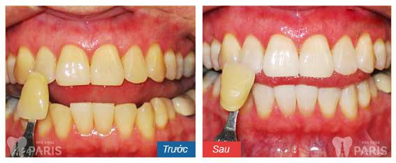 Răng bị ố vàng làm sao để trắng bóng TỰ NHIÊN trở lại? 3
