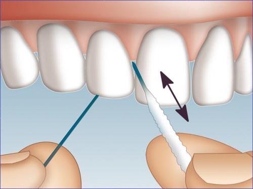 TOP 3 kinh nghiệm làm răng veneer bạn CẦN PHẢI BIẾT 3