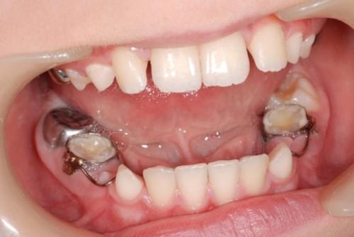 Cách điều trị bệnh viêm tủy răng ở trẻ em hiệu quả 100% 3