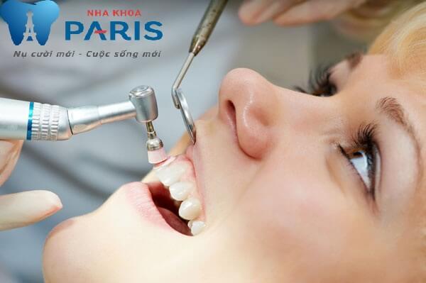 Lấy cao răng siêu âm công nghệ cao an toàn không ê buốt, hiệu quả 99% 3