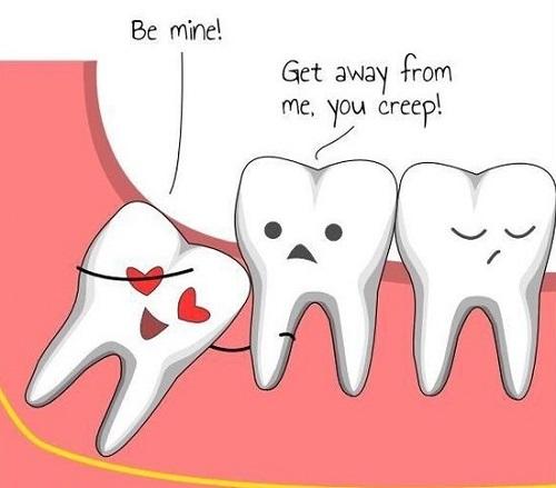 Chuyên gia tư vấn: Mọc răng khôn đau bao lâu thì chấm dứt Vĩnh Viễn? 1
