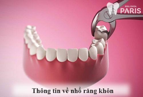 Răng khôn bao giờ mọc và những ẢNH HƯỞNG của việc mọc răng khôn 2