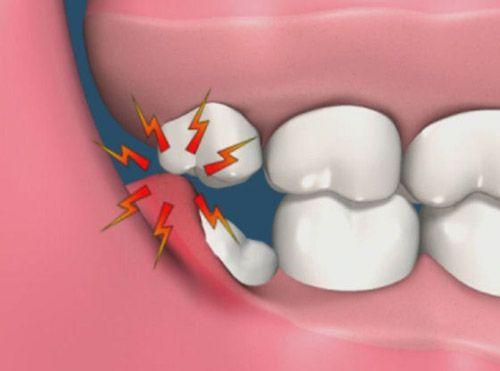 Răng khôn bao giờ mọc và những ẢNH HƯỞNG của việc mọc răng khôn 1