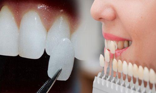 Giải đáp thắc mắc: Làm răng sứ veneer có tốt không? 1