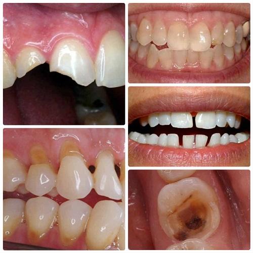 Răng sứ thẩm mỹ Nano Shining 5S - Đỉnh cao công nghệ răng sứ