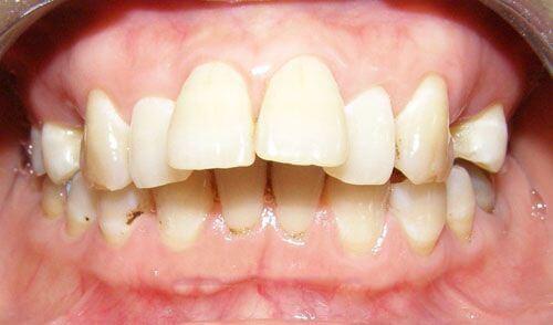 Răng hô phải làm sao hết? 3 cách chữa trị hiệu quả VĨNH VIỄN 1