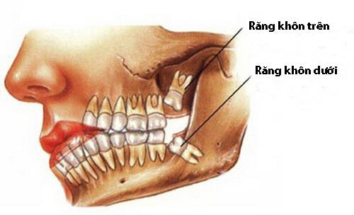 Mọc răng khôn có ý nghĩa gì? Những cách giảm đau CẤP TỐC 1