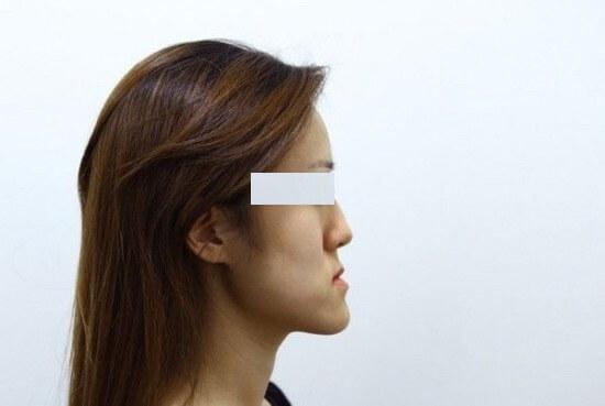 Những trường hợp nào PHÙ HỢP để phẫu thuật hàm hô 1