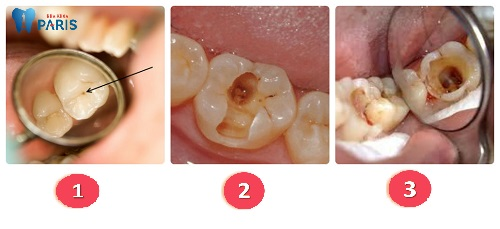 Răng sâu vào tủy có nguy hiểm không & Cách xử lý ?