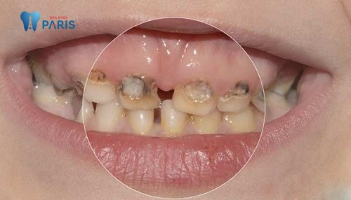 Răng sâu vào tủy có nguy hiểm không? Làm sao để xử lí triệt để? 2