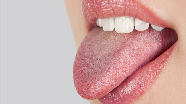 Thông tin A - Z về chứng khô miệng ở người cao tuổi cần chữa kịp thời 1