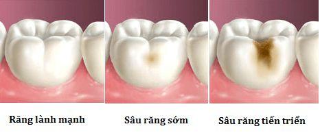 Vén màn bí mật sự tồn tại của con sâu răng? cách chữa sâu răng tại nha khoa