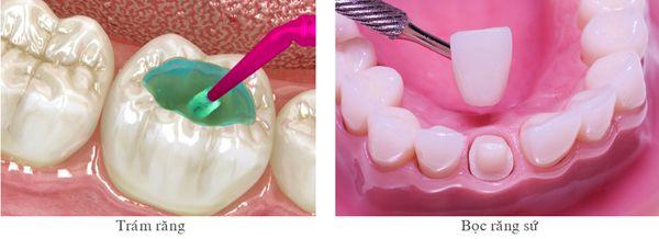 Sự thật về con sâu răng? Trám răng giúp chữa sâu răng hiệu quả