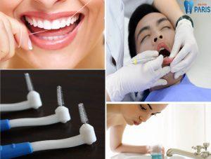Nguy hiểm khôn lường từ cách làm sạch răng bằng tăm tre 2