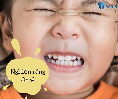 Bệnh nghiến răng ở trẻ em và cách điều trị HIỆU QUẢ NHẤT 1