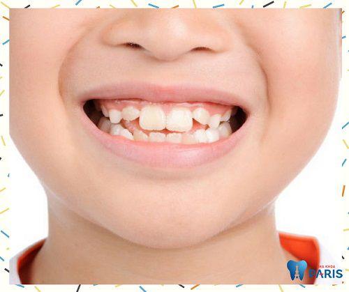 Bệnh nghiến răng ở trẻ em và cách điều trị HIỆU QUẢ NHẤT 2