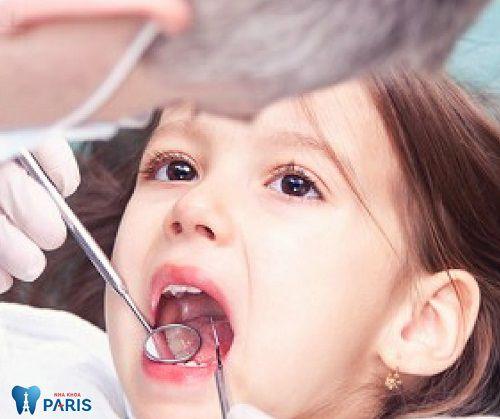 Bệnh nghiến răng ở trẻ em và cách điều trị HIỆU QUẢ NHẤT 3