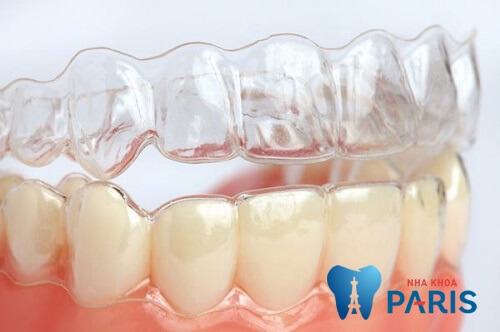 Ngủ nghiến răng là người như thế nào? Sau liệu có vất vả? 3