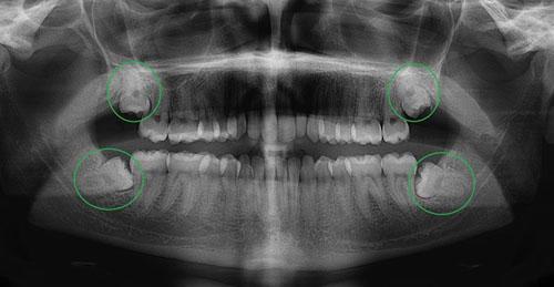 Mọc răng khôn uống thuốc gì giảm đau NHANH không biến chứng 1