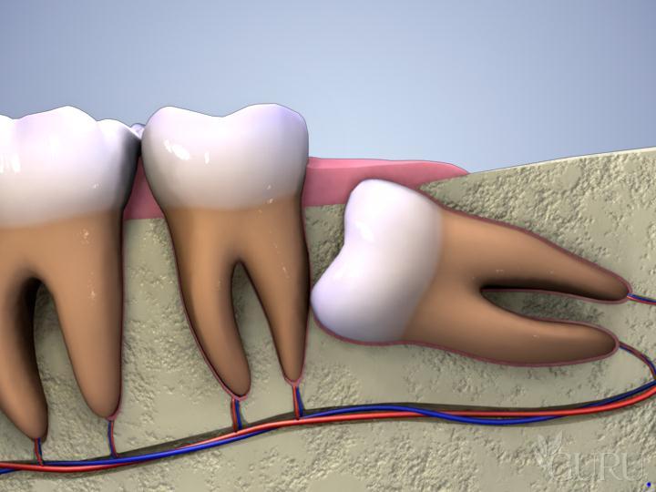 Bạn có biết: Mọc răng khôn có ảnh hưởng gì không tới sức khỏe? 1