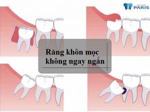 Nhổ răng khôn không đau như nhiều người vẫn tưởng, c