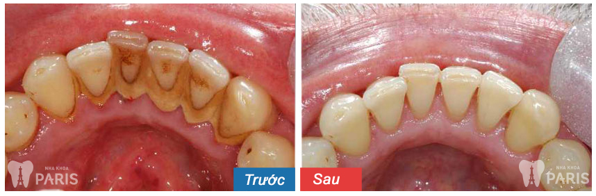 3 Bước chữa hôi miệng và chảy máu chân răng TRIỆT ĐỂ 100% 3