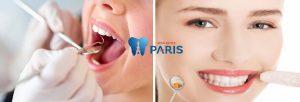 TOP 6 loại thuốc chữa hôi miệng đặc trị TẬN GỐC hiệu quả 100% 6